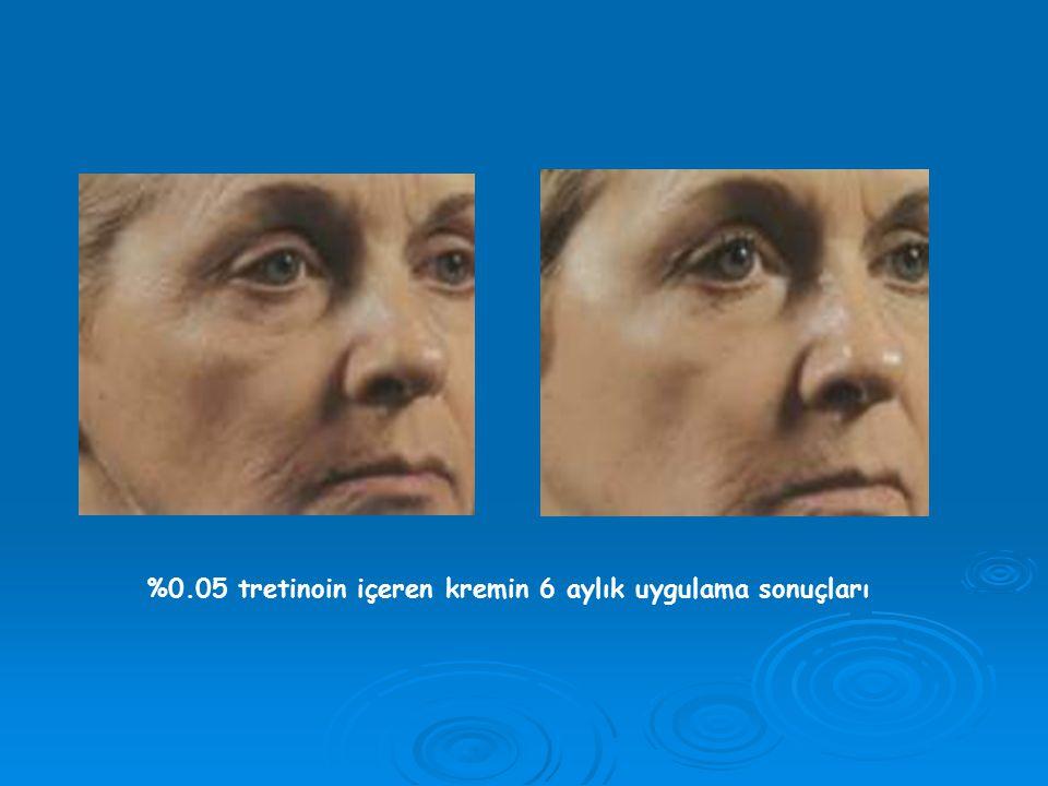 III- Kimyasal Peeling Uygulaması: * Tüm yüz veya sadece yerel olarak göz * Tüm yüz veya sadece yerel olarak göz ve ağız çevresi için uygulanabilir.
