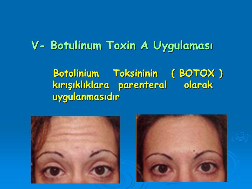 V- Botulinum Toxin A Uygulaması Botolinium Toksininin ( BOTOX ) Botolinium Toksininin ( BOTOX ) kırışıklıklara parenteral olarak kırışıklıklara parent