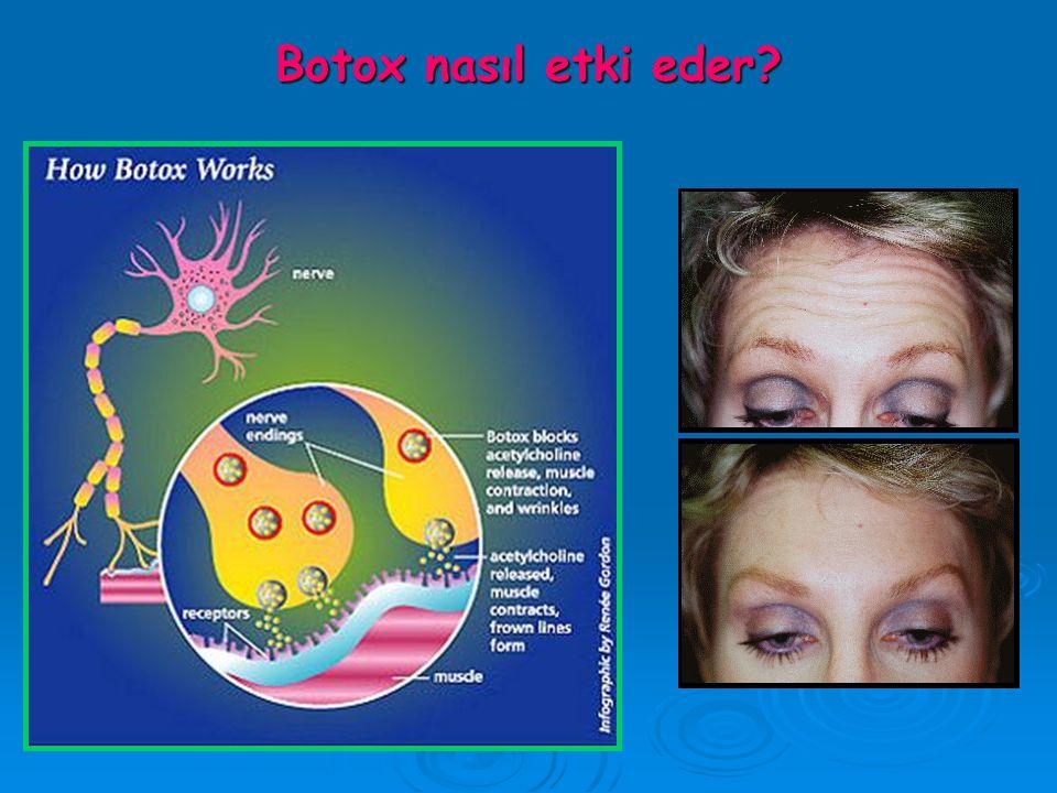 Botox nasıl etki eder?