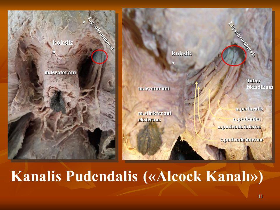 11 Kanalis Pudendalis («Alcock Kanalı») Lig.sakrotuberale Tuber iskiadikum n.perinealis n.pudendus a.pudenda interna v.pudenda interna m.levator ani koksik s m.sfinkter ani eksternus koksik s Lig.sakrotuberal e m.levator ani