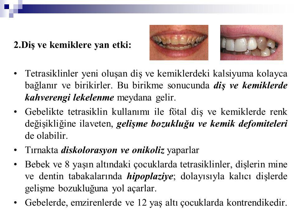 2.Diş ve kemiklere yan etki: Tetrasiklinler yeni oluşan diş ve kemiklerdeki kalsiyuma kolayca bağlanır ve birikirler. Bu birikme sonucunda diş ve kemi