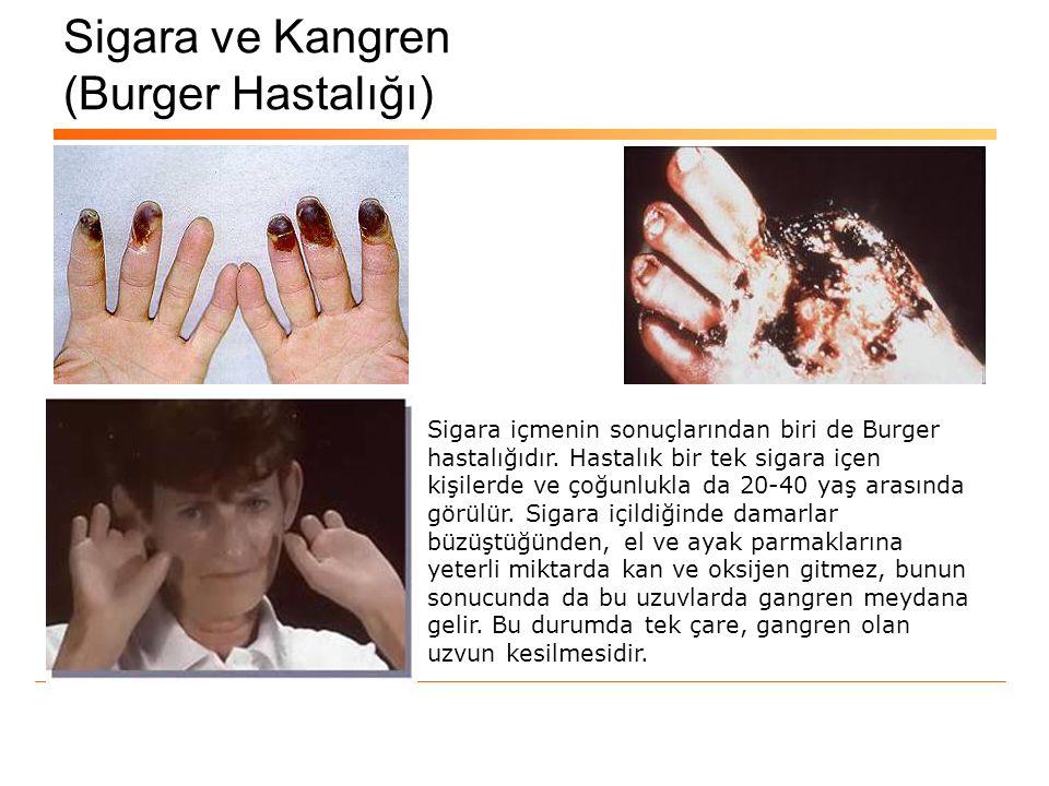 Sigara ve Kangren (Burger Hastalığı) Sigara içmenin sonuçlarından biri de Burger hastalığıdır. Hastalık bir tek sigara içen kişilerde ve çoğunlukla da