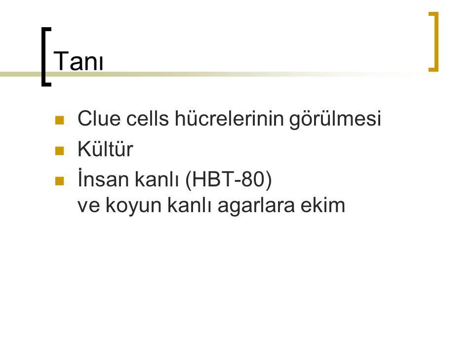 Tanı Clue cells hücrelerinin görülmesi Kültür İnsan kanlı (HBT-80) ve koyun kanlı agarlara ekim