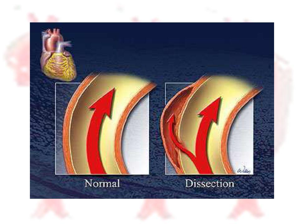 Tanısal Yaklaşım - Unstabil Hasta : EKG çek.MI olup olmadığını değerlendir .