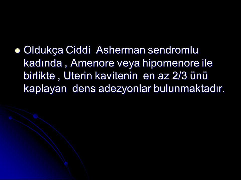 Oldukça Ciddi Asherman sendromlu kadında, Amenore veya hipomenore ile birlikte, Uterin kavitenin en az 2/3 ünü kaplayan dens adezyonlar bulunmaktadır.