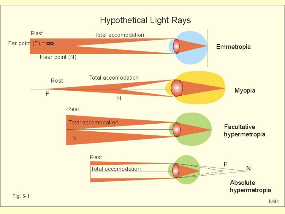Akomodasyon (Uyum) 6 m' den daha yakında olan nesnelerin net görülebilmesi için lens ile retina arasındaki uzaklığın arttırılmasıyla veya lensin eğril