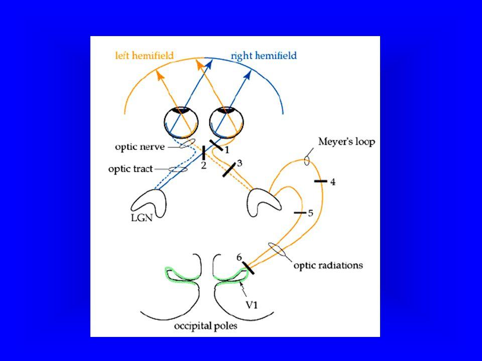 Yanyana 3 fotoreseptörden ortadaki uyarılırsa, sinyal bipolar hücreler ile iletilir. Yandaki karanlıkta kalan fotoreseptörden biri horizontal hücrenin