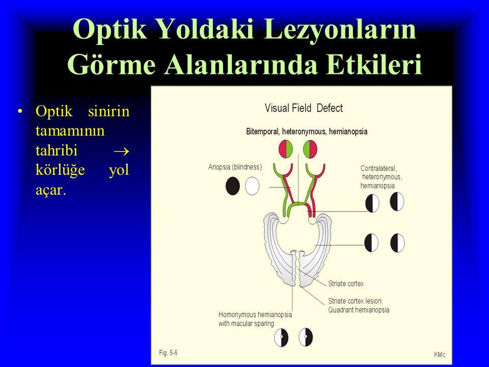 Görme Alanları; Perimetre Görme alanı, belli bir anda bir göz tarafından görülen görüş alanıdır. Nazal tarafda görülen alan nazal görme alanı, lateral