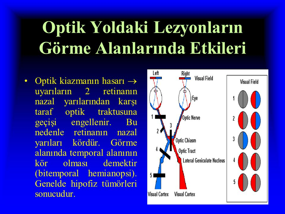 Optik Yoldaki Lezyonların Görme Alanlarında Etkileri Optik sinirin tamamının tahribi  körlüğe yol açar.