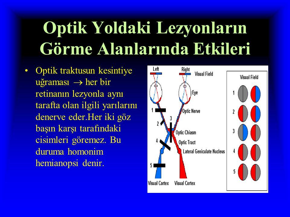 Optik Yoldaki Lezyonların Görme Alanlarında Etkileri Optik kiazmanın hasarı  uyarıların 2 retinanın nazal yarılarından karşı taraf optik traktusuna g