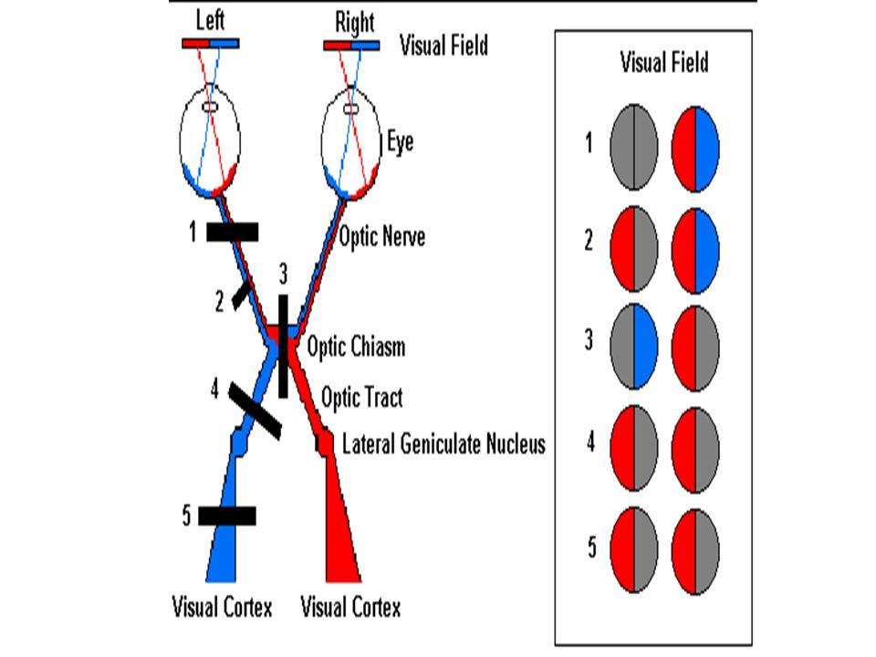 Optik Yoldaki Lezyonların Görme Alanlarında Etkileri Optik traktusun kesintiye uğraması  her bir retinanın lezyonla aynı tarafta olan ilgili yarıları