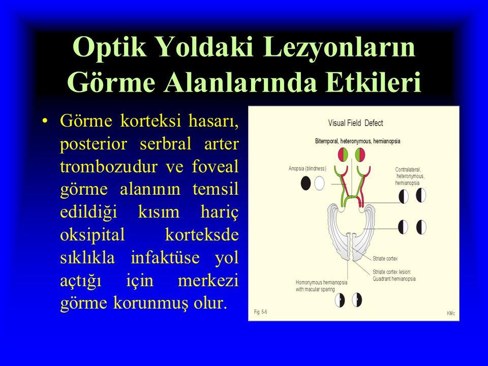 Optik Yoldaki Lezyonların Görme Alanlarında Etkileri Tek taraflı optik radyasyon yada görme korteksi hasarıda  homonim hemianopsiye neden olur.