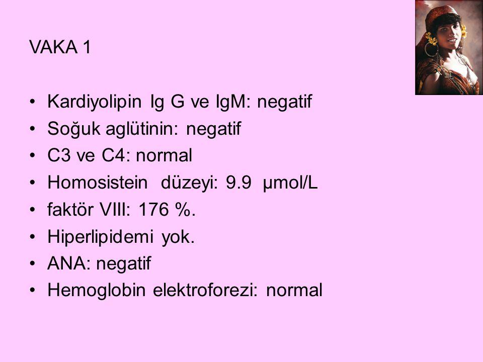 VAKA 1 Kardiyolipin Ig G ve IgM: negatif Soğuk aglütinin: negatif C3 ve C4: normal Homosistein düzeyi: 9.9 µmol/L faktör VIII: 176 %. Hiperlipidemi yo