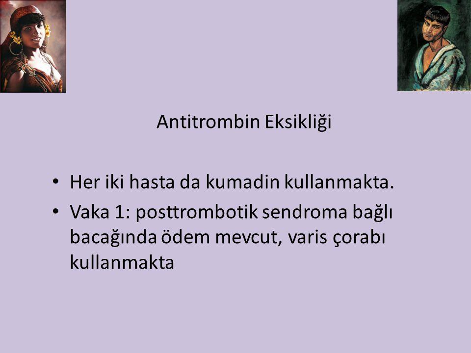 Antitrombin Eksikliği Her iki hasta da kumadin kullanmakta. Vaka 1: posttrombotik sendroma bağlı bacağında ödem mevcut, varis çorabı kullanmakta