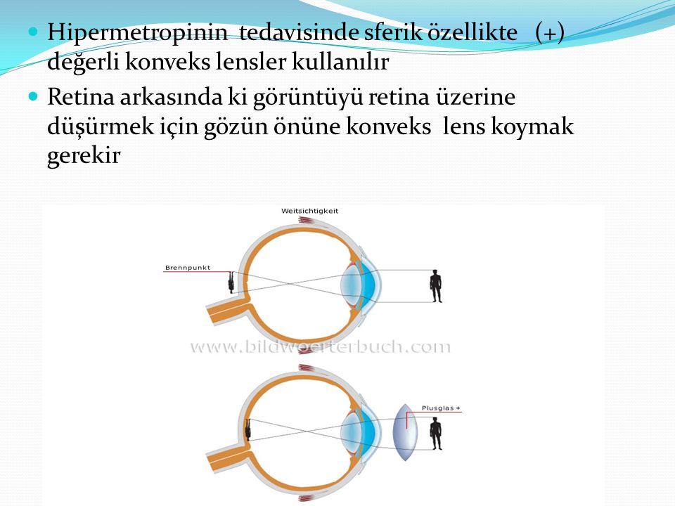 Hipermetropinin tedavisinde sferik özellikte (+) değerli konveks lensler kullanılır Retina arkasında ki görüntüyü retina üzerine düşürmek için gözün önüne konveks lens koymak gerekir