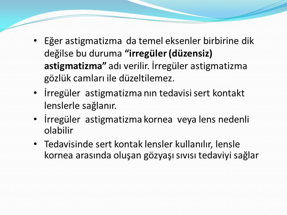 Eğer astigmatizma da temel eksenler birbirine dik değilse bu duruma irregüler (düzensiz) astigmatizma adı verilir.