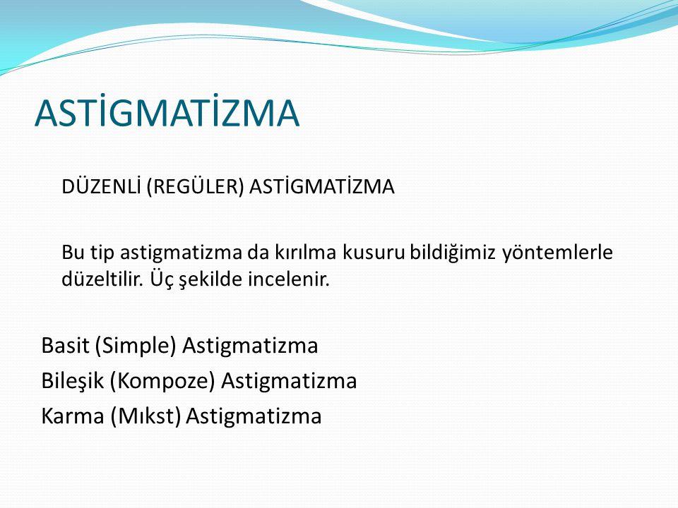ASTİGMATİZMA DÜZENLİ (REGÜLER) ASTİGMATİZMA Bu tip astigmatizma da kırılma kusuru bildiğimiz yöntemlerle düzeltilir.