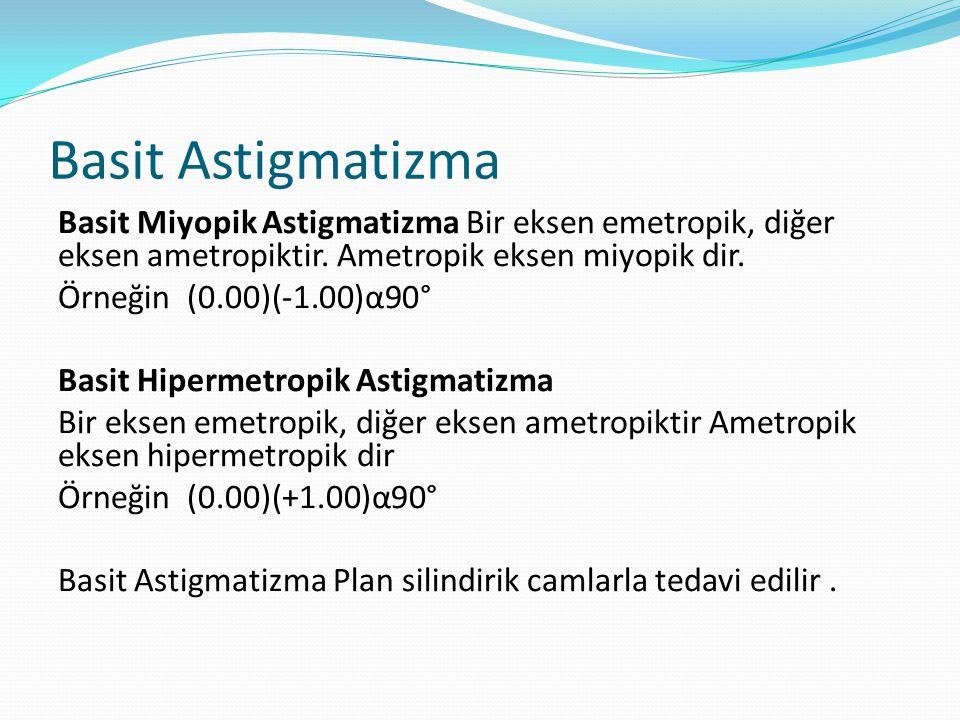 Basit Astigmatizma Basit Miyopik Astigmatizma Bir eksen emetropik, diğer eksen ametropiktir.