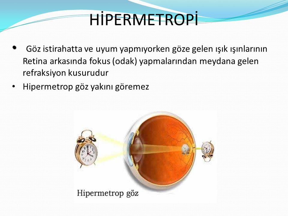 HİPERMETROPİ Göz istirahatta ve uyum yapmıyorken göze gelen ışık ışınlarının Retina arkasında fokus (odak) yapmalarından meydana gelen refraksiyon kusurudur Hipermetrop göz yakını göremez