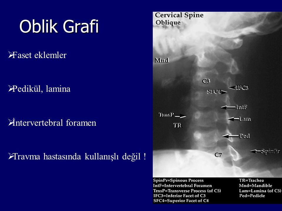  Faset eklemler  Pedikül, lamina  İntervertebral foramen  Travma hastasında kullanışlı değil ! Oblik Grafi