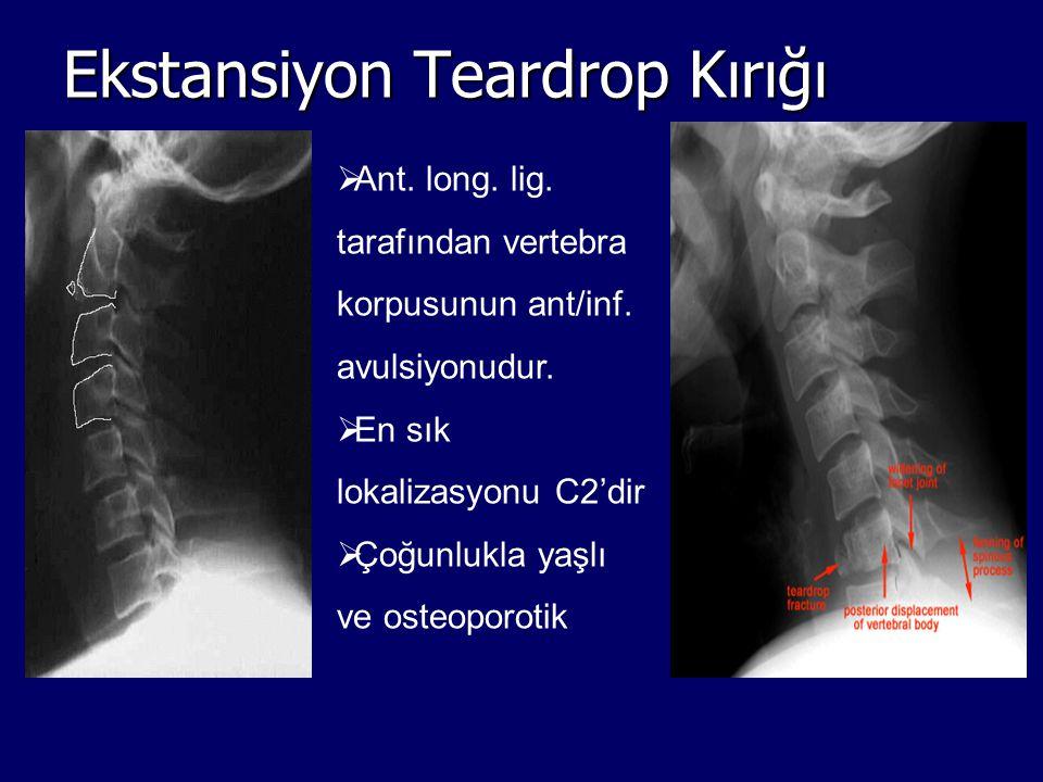 Ekstansiyon Teardrop Kırığı  Ant. long. lig. tarafından vertebra korpusunun ant/inf. avulsiyonudur.  En sık lokalizasyonu C2'dir  Çoğunlukla yaşlı