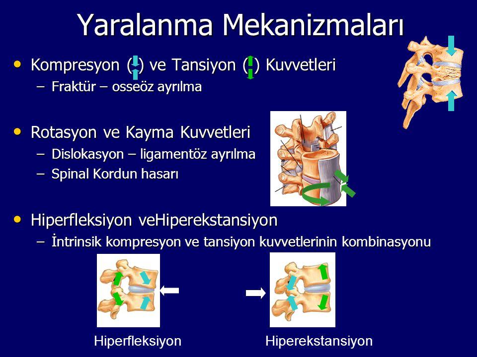 Yaralanma Mekanizmaları Kompresyon ( ) ve Tansiyon ( ) Kuvvetleri Kompresyon ( ) ve Tansiyon ( ) Kuvvetleri –Fraktür – osseöz ayrılma Rotasyon ve Kaym