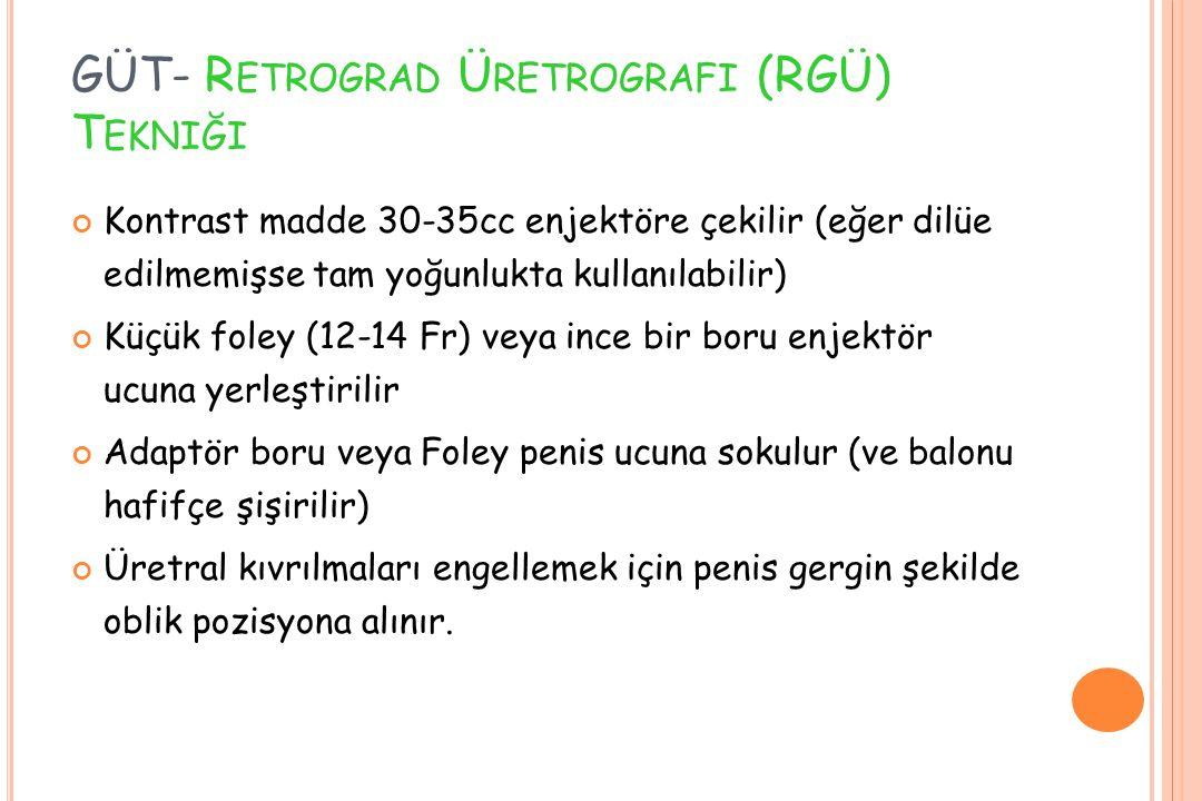GÜT- R ETROGRAD Ü RETROGRAFI (RGÜ) T EKNIĞI Kontrast madde 30-35cc enjektöre çekilir (eğer dilüe edilmemişse tam yoğunlukta kullanılabilir) Küçük fole