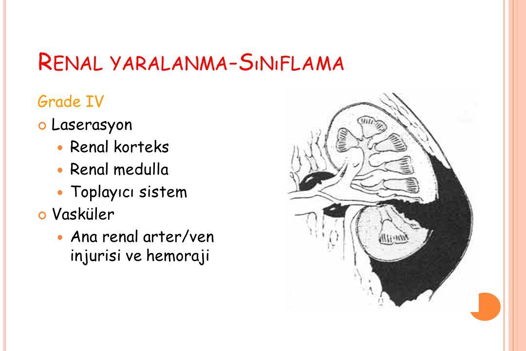 R ENAL YARALANMA -S ıNıFLAMA Grade IV Laserasyon Renal korteks Renal medulla Toplayıcı sistem Vasküler Ana renal arter/ven injurisi ve hemoraji