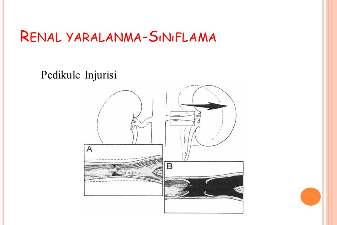 R ENAL YARALANMA -S ıNıFLAMA Pedikule Injurisi