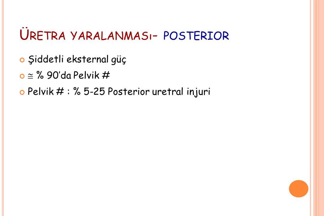 Ü RETRA YARALANMASı - POSTERIOR Şiddetli eksternal güç  % 90'da Pelvik # Pelvik # : % 5-25 Posterior uretral injuri