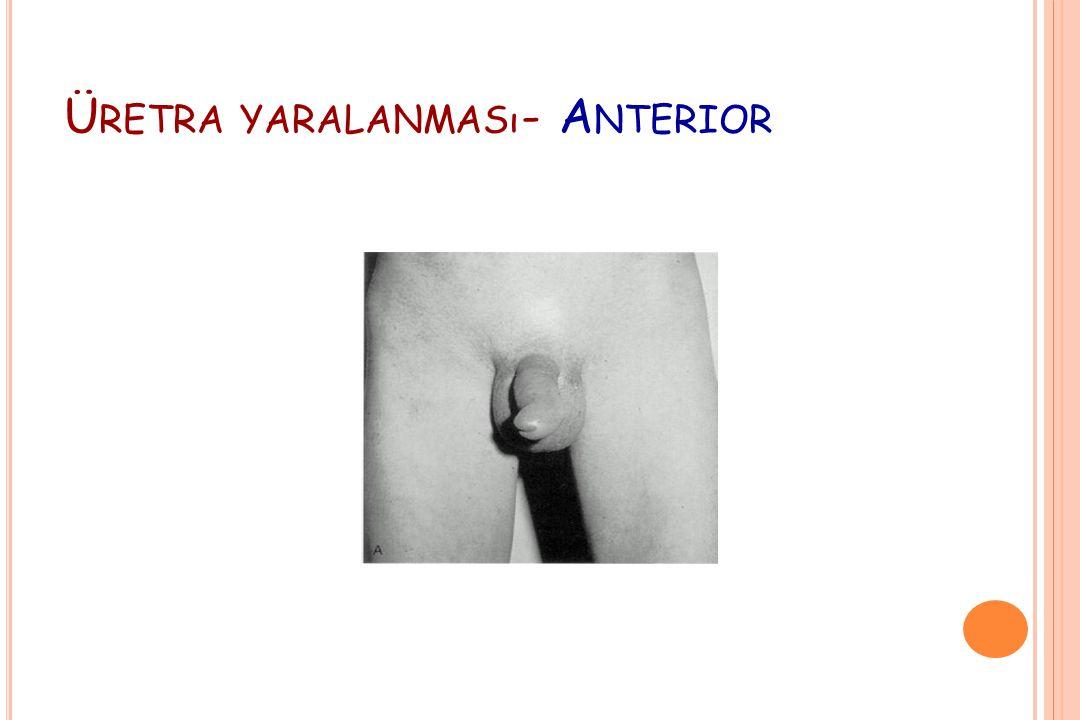 Ü RETRA YARALANMASı - A NTERIOR