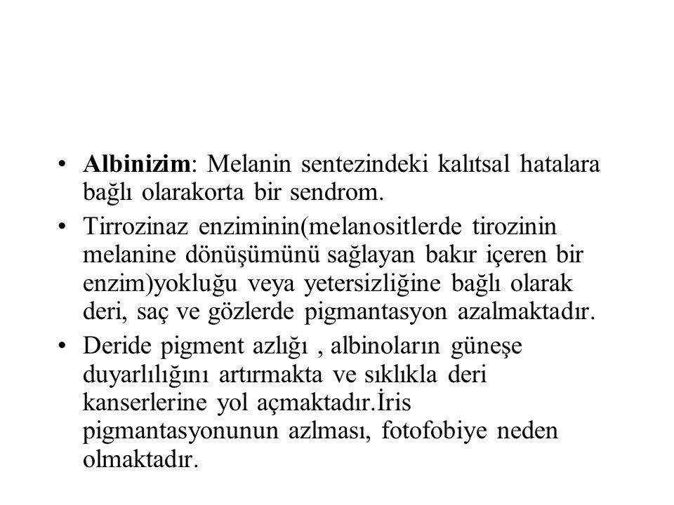 Albinizim: Melanin sentezindeki kalıtsal hatalara bağlı olarakorta bir sendrom. Tirrozinaz enziminin(melanositlerde tirozinin melanine dönüşümünü sağl