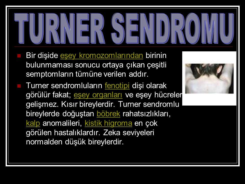 Bir dişide eşey kromozomlarından birinin bulunmaması sonucu ortaya çıkan çeşitli semptomların tümüne verilen addır.eşey kromozomlarından Turner sendro