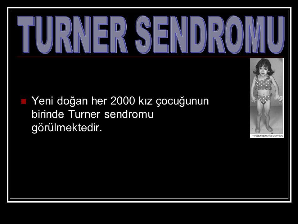 Yeni doğan her 2000 kız çocuğunun birinde Turner sendromu görülmektedir.