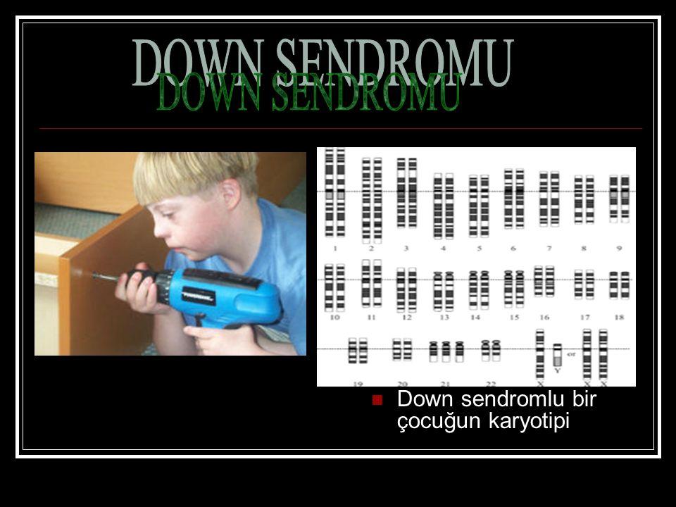 Down sendromlu bir çocuğun karyotipi