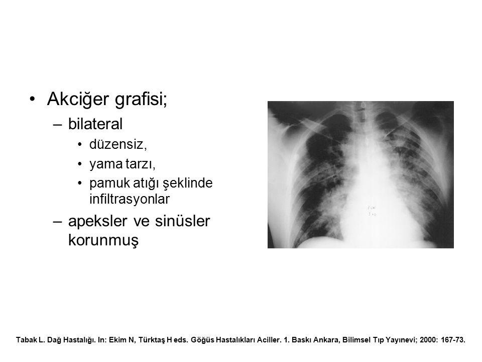 Akciğer grafisi; –bilateral düzensiz, yama tarzı, pamuk atığı şeklinde infiltrasyonlar –apeksler ve sinüsler korunmuş Tabak L. Dağ Hastalığı. In: Ekim