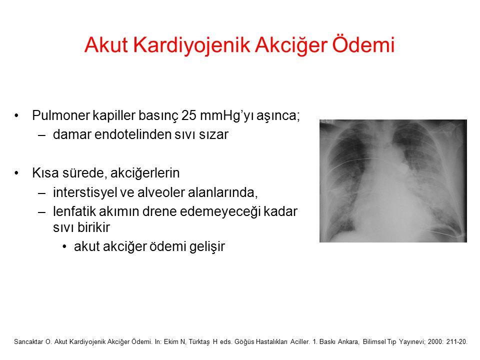 Akut Kardiyojenik Akciğer Ödemi Pulmoner kapiller basınç 25 mmHg'yı aşınca; –damar endotelinden sıvı sızar Kısa sürede, akciğerlerin –interstisyel ve