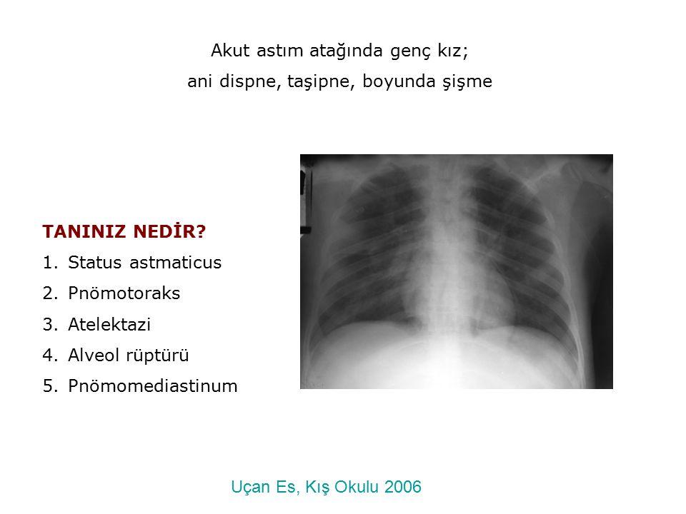TANINIZ NEDİR? 1.Status astmaticus 2.Pnömotoraks 3.Atelektazi 4.Alveol rüptürü 5.Pnömomediastinum Akut astım atağında genç kız; ani dispne, taşipne, b
