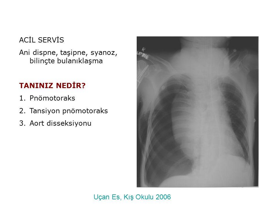 ACİL SERVİS Ani dispne, taşipne, syanoz, bilinçte bulanıklaşma TANINIZ NEDİR? 1.Pnömotoraks 2.Tansiyon pnömotoraks 3.Aort disseksiyonu Uçan Es, Kış Ok