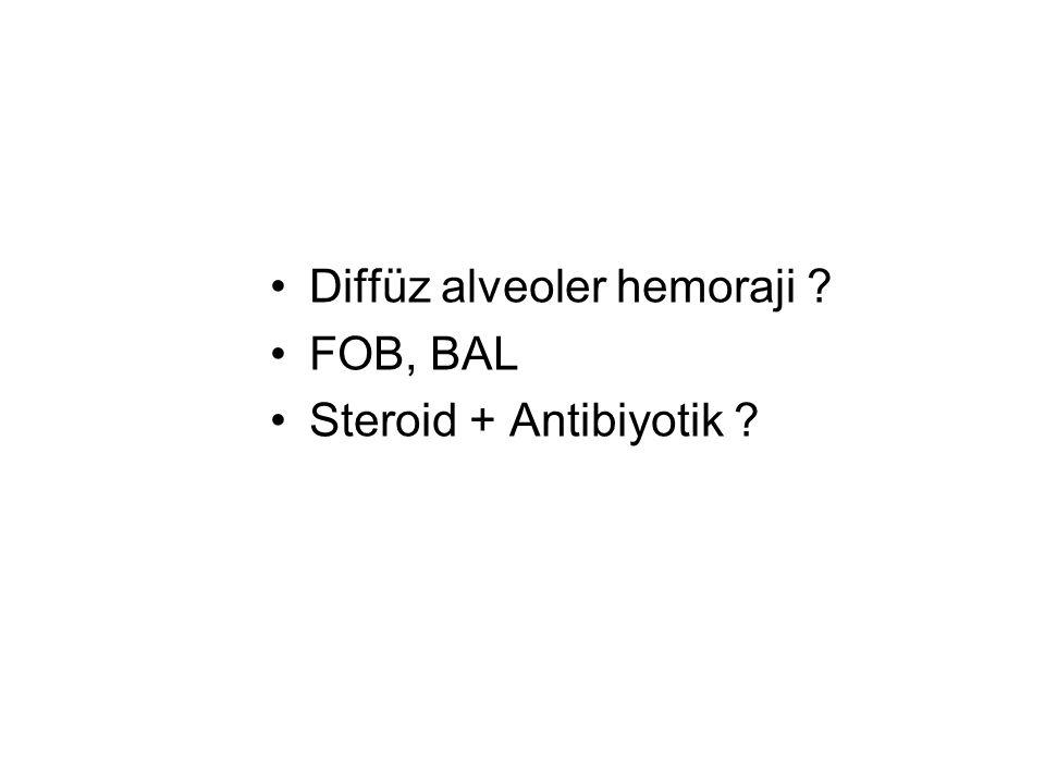 Diffüz alveoler hemoraji ? FOB, BAL Steroid + Antibiyotik ?