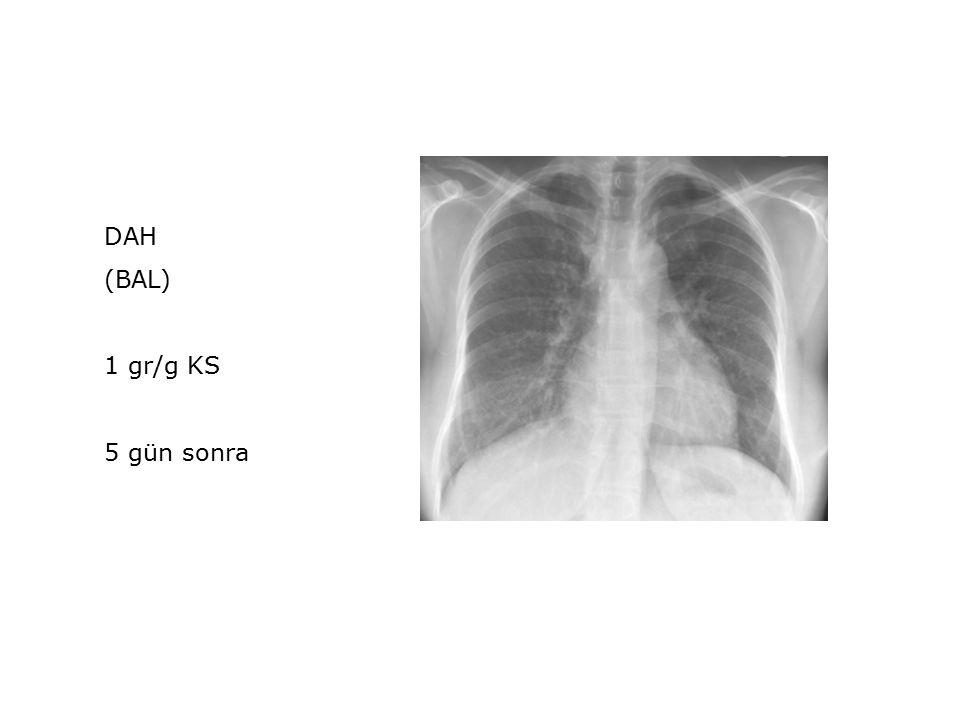 DAH (BAL) 1 gr/g KS 5 gün sonra