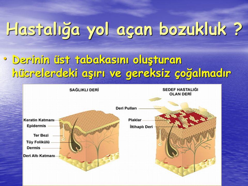 Hastalığa yol açan bozukluk ? Derinin üst tabakasını oluşturan hücrelerdeki aşırı ve gereksiz çoğalmadır Derinin üst tabakasını oluşturan hücrelerdeki