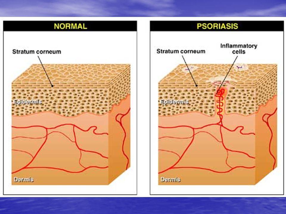 Hastalığın özellikleri Kronik, uzun süreli bir cilt hastalığıdır.