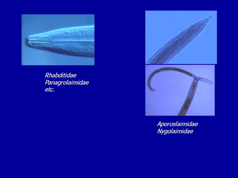 Rhabditidae Panagrolaimidae etc. Aporcelaimidae Nygolaimidae