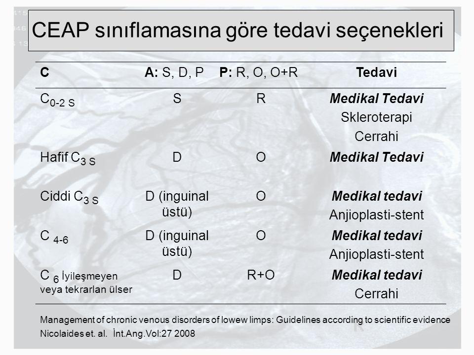 CEAP sınıflamasına göre tedavi seçenekleri CA: S, D, PP: R, O, O+RTedavi C 0-2 S SRMedikal Tedavi Skleroterapi Cerrahi Hafif C 3 S DOMedikal Tedavi Ci