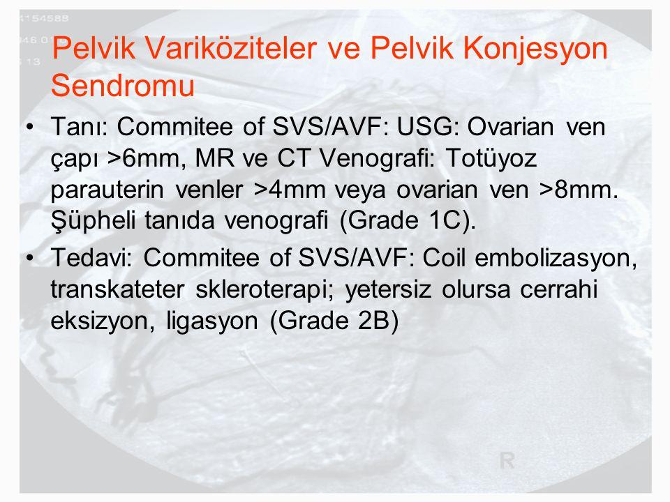 Pelvik Variköziteler ve Pelvik Konjesyon Sendromu Tanı: Commitee of SVS/AVF: USG: Ovarian ven çapı >6mm, MR ve CT Venografi: Totüyoz parauterin venler