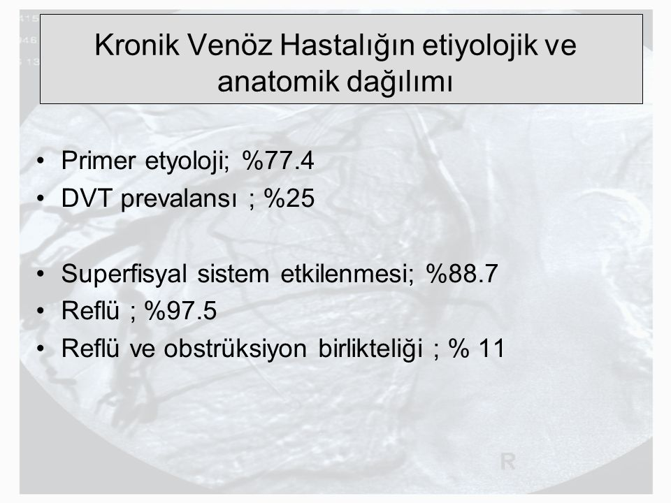 Kronik Venöz Hastalığın etiyolojik ve anatomik dağılımı Primer etyoloji; %77.4 DVT prevalansı ; %25 Superfisyal sistem etkilenmesi; %88.7 Reflü ; %97.