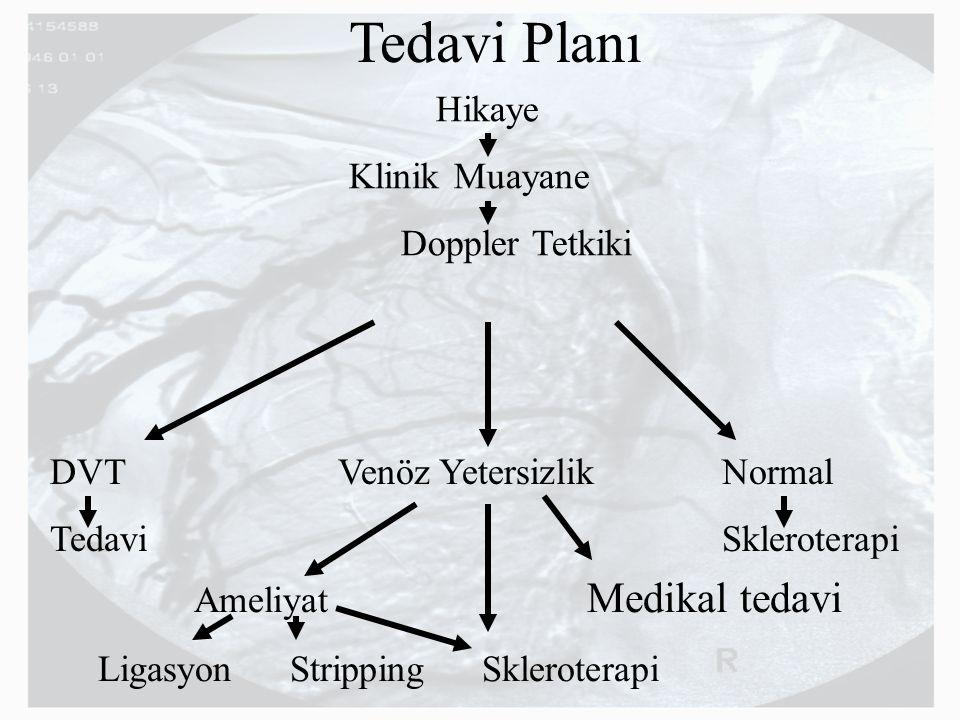Tedavi Planı Hikaye Klinik Muayane Doppler Tetkiki DVT Venöz YetersizlikNormal TedaviSkleroterapi Ameliyat Medikal tedavi LigasyonStrippingSkleroterap