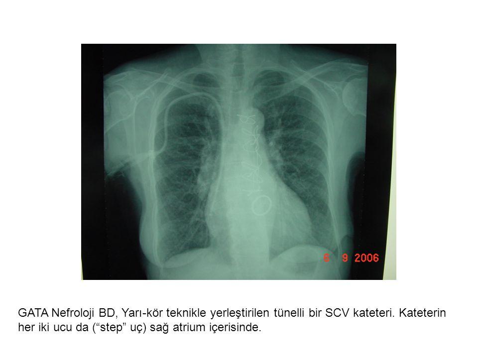 """GATA Nefroloji BD, Yarı-kör teknikle yerleştirilen tünelli bir SCV kateteri. Kateterin her iki ucu da (""""step"""" uç) sağ atrium içerisinde."""