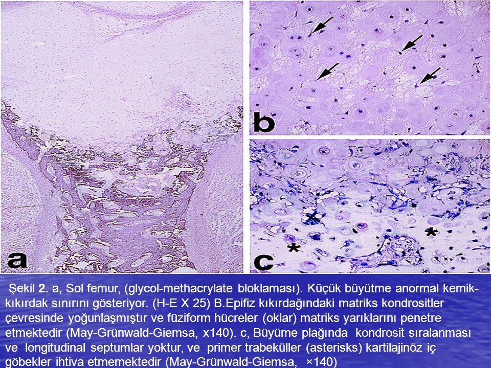 Şekil 2. a, Sol femur, (glycol-methacrylate bloklaması). Küçük büyütme anormal kemik- kıkırdak sınırını gösteriyor. (H-E X 25) B.Epifiz kıkırdağındaki